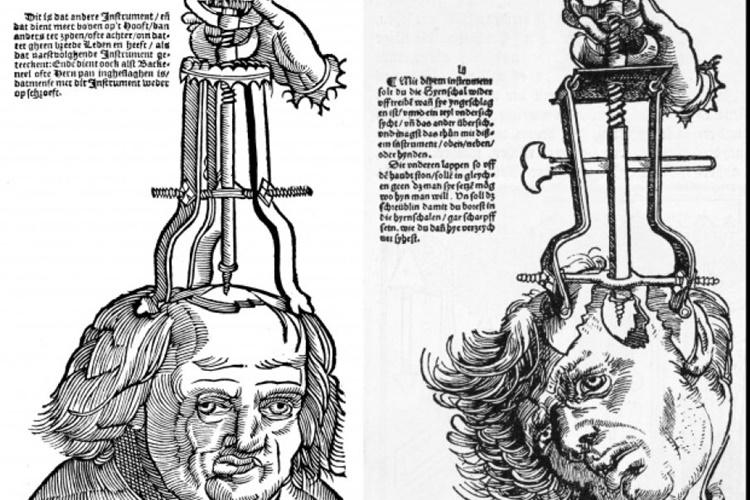 bizarre-treatments-10