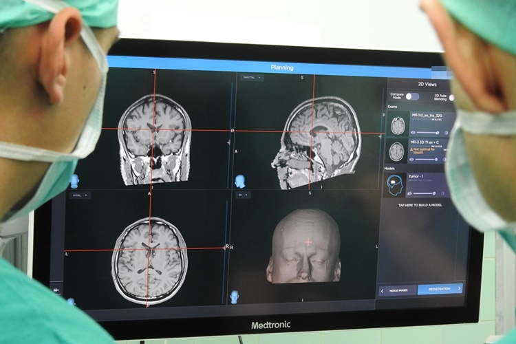 neurokirurgija001